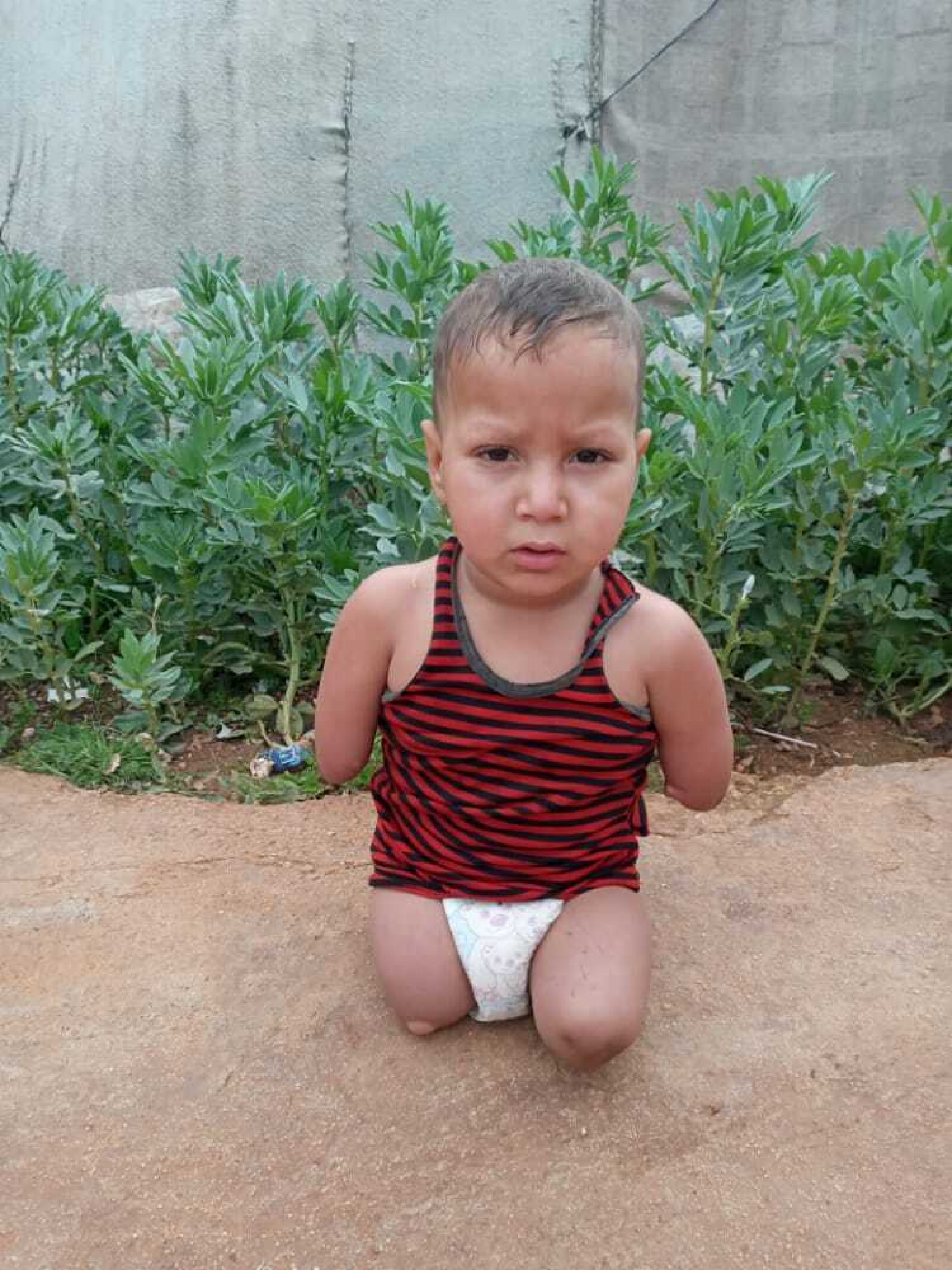 Four-year-old Assef al-Ablo, whose parents lived in the Khan Sheikhoun area in Syria, where the 2017 chemical attack took place, was born without limbs.