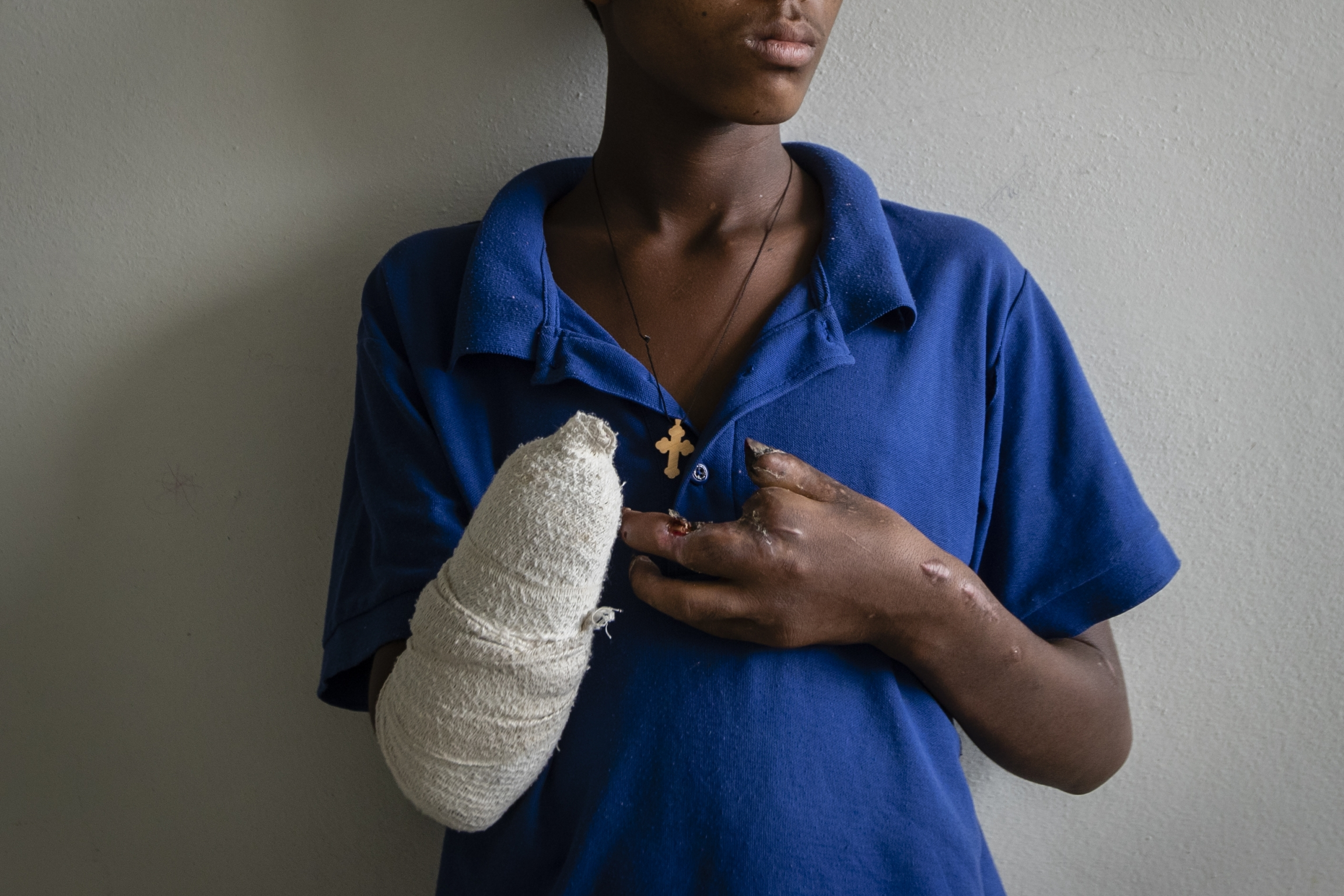 Boy wearing blue has bandage around arm area from losing his hand and fingers.