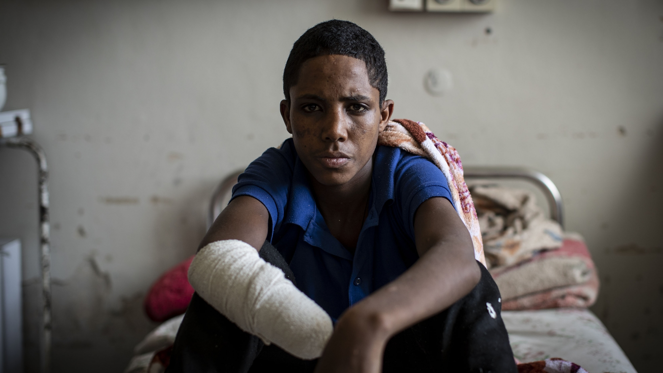 A boy wearing blue sits on hospital bed with wrapped bandage from missing limbs.