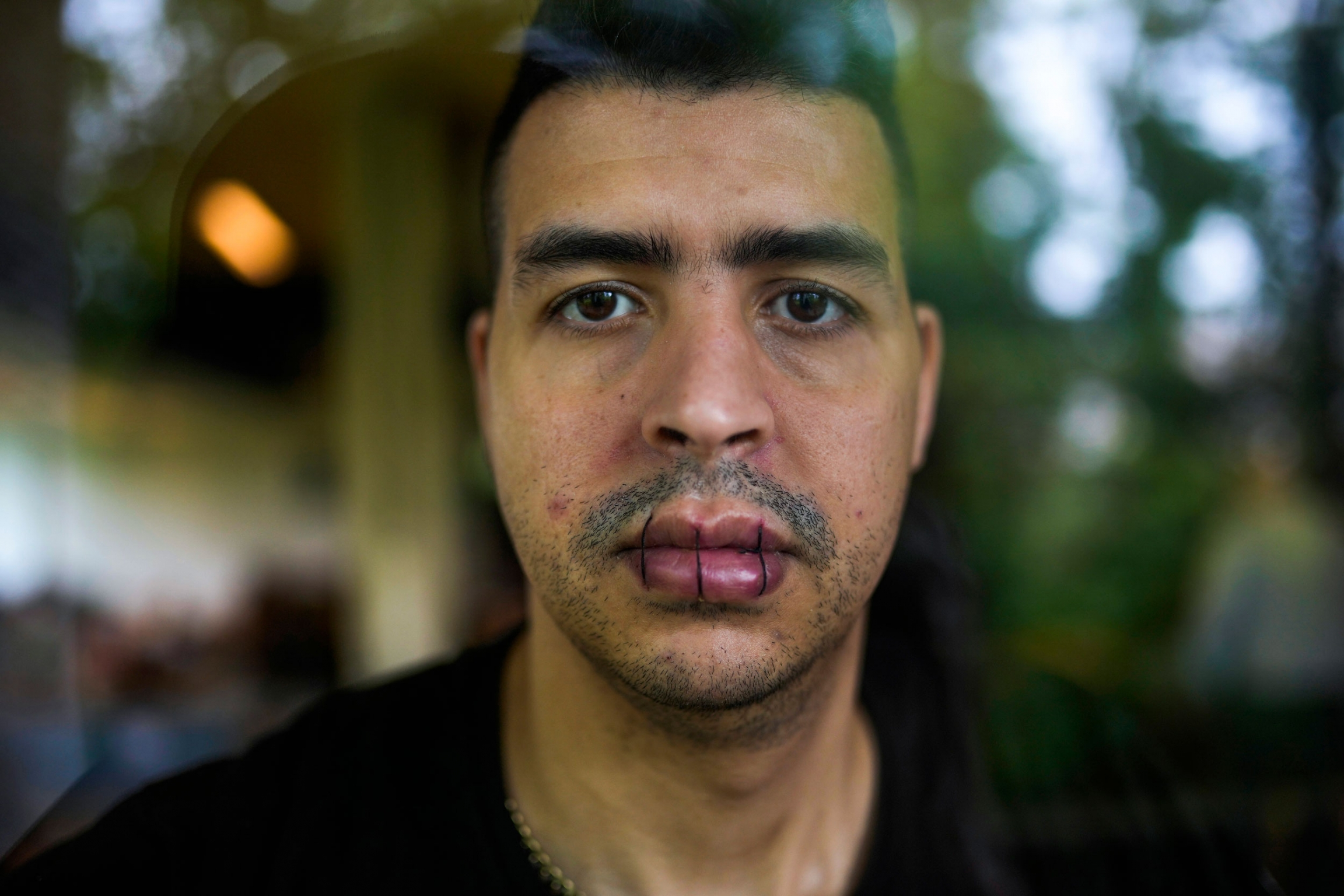 A close up portrait of a man who has sewn his lips together with three stitches.