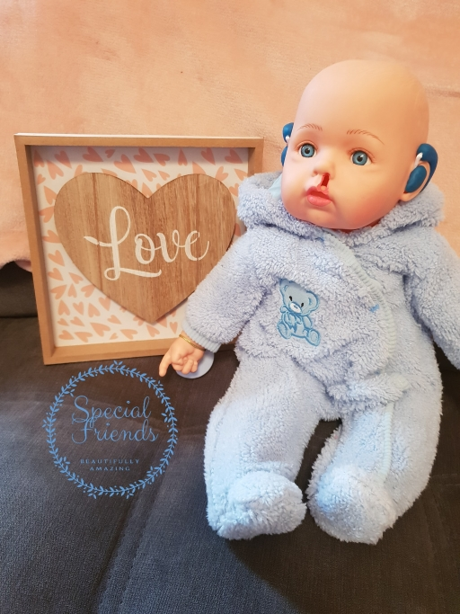 A Special Friends doll with a cleft lip and hearing aids.