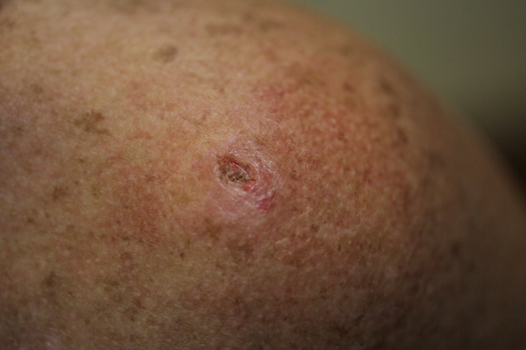 <p>A patient has a mark on her skin after a biopsy was performed on a lesion to check for cancer due to sun exposure on June 15, 2011 in Miami, Florida.</p>