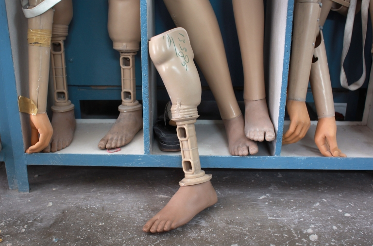 <p>Prosthetic legs and arms await new amputees at a Red Cross orthopedic center in Kabul, Afghanistan on September 10, 2011.</p>