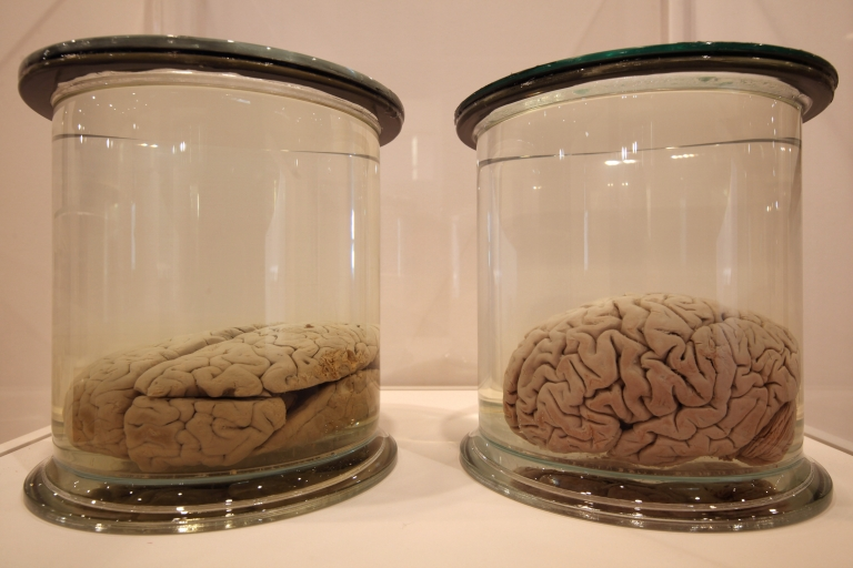 <p>A new study says that fearful memories can be permanently erased from the brain.</p>