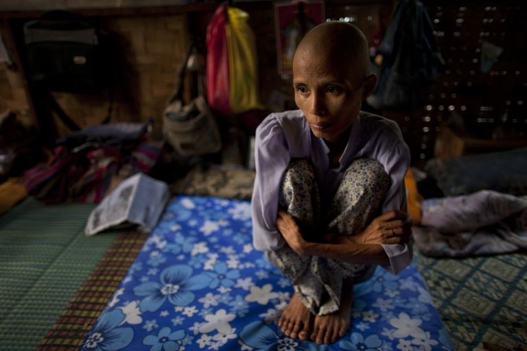<p>Ma Gyim , 41, a victim of HIV/AIDS sits on her bed after shaving her head at the HIV-AIDS Care and Prevention center April 5, 2012 in Yangon, Myanmar.</p>