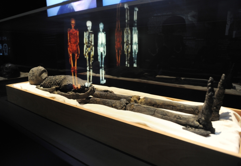 <p>A false toe found on an Egyptian mummy likely world's first prosthetic ever discovered.</p>