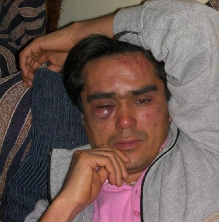 <p>Safar Haidari, a 29-year-old asylum seeker from Afghanistan and vice-president of the Nour Afghan cultural association, who was attacked by a group of 10–15 men on December 23, 2011 in Athens, Greece.</p>