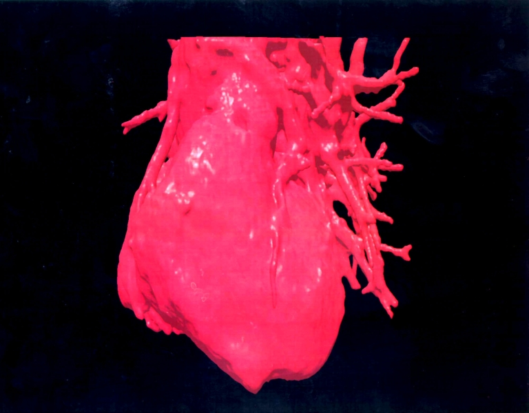 <p>A new study added evidence to role of inflammation in heart disease leading doctors to possible vaccine.</p>