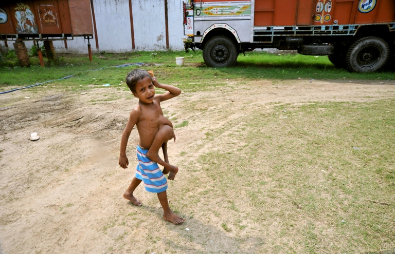 <p>Indian boy Deepak Kumar, 7, cries as he walks with a parasitic twin growing from his torso in Belhari village, about 125 kms from Patna in Bihar state, Feb. 18, 2010.</p>