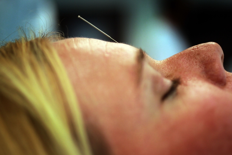 <p>A new study has shown that acupuncture does work for pain relief.</p>