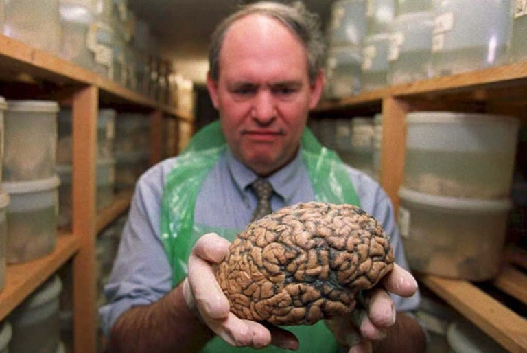 <p>Dr. Clive Bruton, a neuropathologist at Runwell Psychiatric Hospital in Essex, England, holds one of 8,000 brains stored in their 'brain bank.'</p>