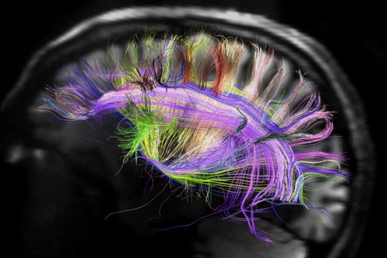 <p>The image shows the Manhattan-like grid structure of brain fibers using a powerful new scanner that is used to map the complex organ.</p>