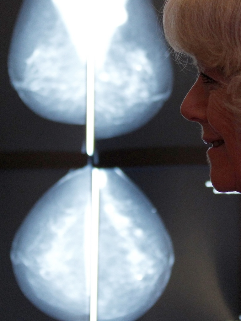 <p>Camilla, Duchess of Cornwall is shown a mammogram scanner during a visit to Nottingham Breast Institute in England.</p>