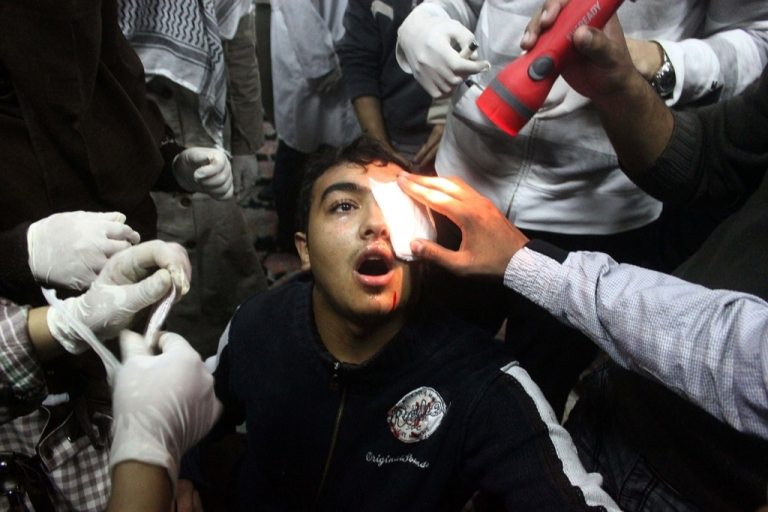 <p>An Egyptian protester wounded in the eye is treated at a field hospital in central Cairo following deadly clashes with security forces on November 20, 2011.</p>