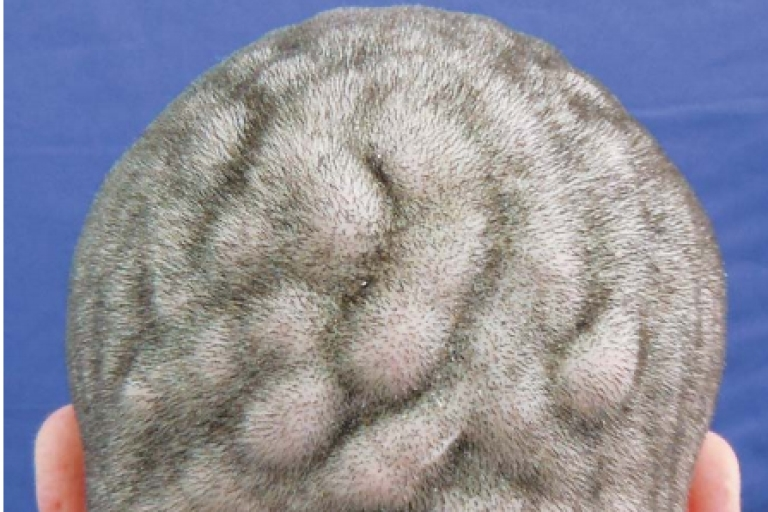 <p>Cutis verticis gyrate makes someone's brain look like it is growing on the outside.</p>