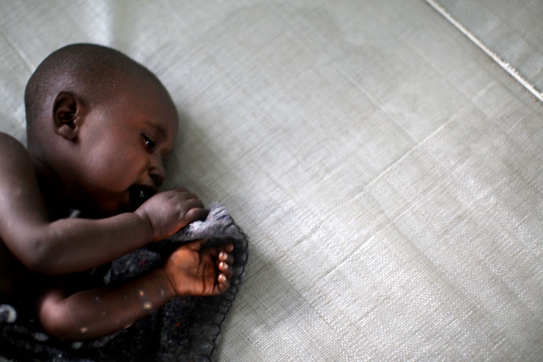 <p>A Congolese baby receives treatment for cholera at a clinic in the town of Goma, Congo, Nov. 10, 2008.</p>