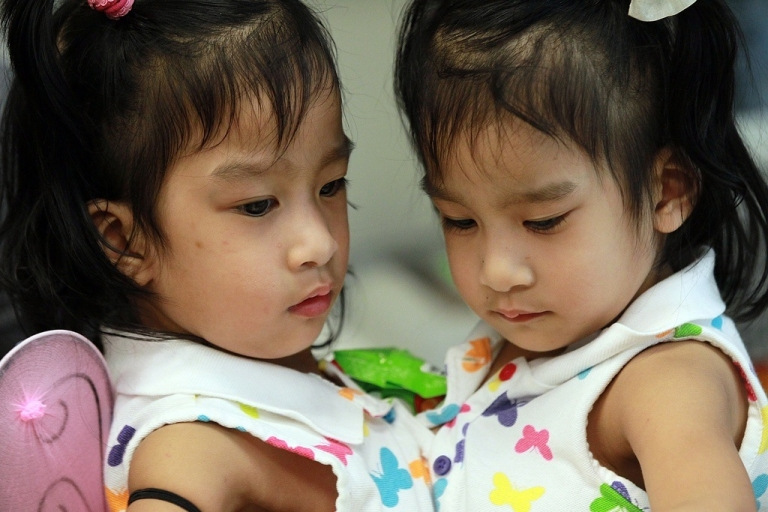<p>Another set of conjoined twins Angelica, (right), and Angelina Sabuco, who were separated successfully this year in Palo Alto, California.</p>