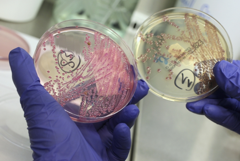 <p>A lab technician holds a bacteria culture that shows a positive infection of enterohemorrhagic E. coli, also known as the EHEC bacteria, from a patient at the University Medical Center Hamburg-Eppendorf on June 2, 2011 in Hamburg, Germany. German health authorities are continuing to grapple with the current outbreak of EHEC.</p>