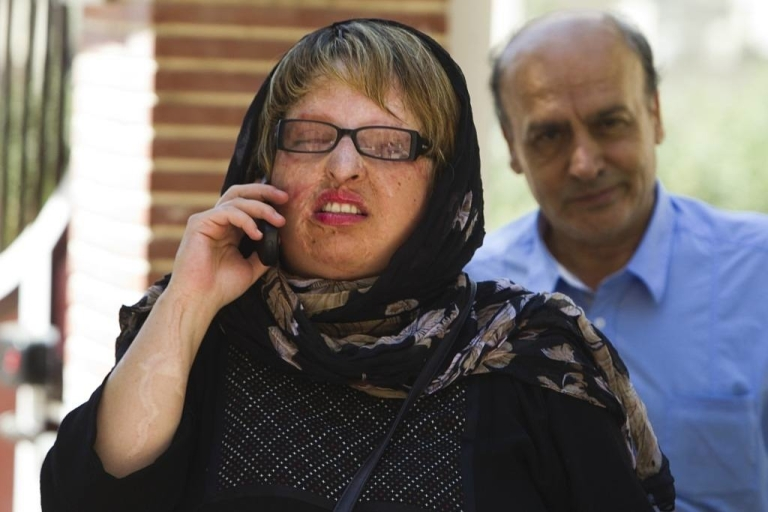 <p>Ameneh Bahrami, who was blinded in both eyes after having acid hurled in her face by a university classmate when she repeatedly spurned his offer of marriage, arrives at her home with her father in Tehran, on July 31, 2011.</p>