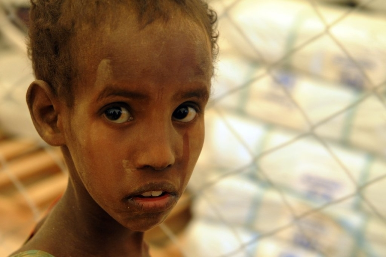 <p>This young Somali refugee has just arrived at Dadaab refugee camp on July 10, 2011 in northern Kenya, where he waits for registration into the safe haven. He joins thousands of other refugees seeking water and aid at Dadaab's already overcrowded facilities.</p>
