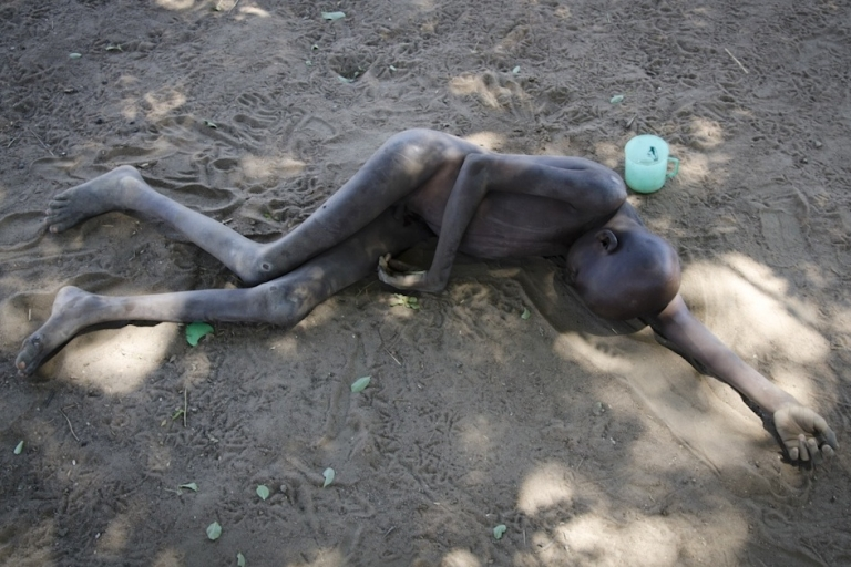 <p>Patrick Anywar,14, who suffers from mystery illness Nodding Disease, lies in the dust outside his family home in northern Uganda. Scientists are struggling to find<br /> the cause of the ailment which the Ugandan government says has affected over 4,000 children in northern Uganda and claimed the lives of 200 in past few years.</p>