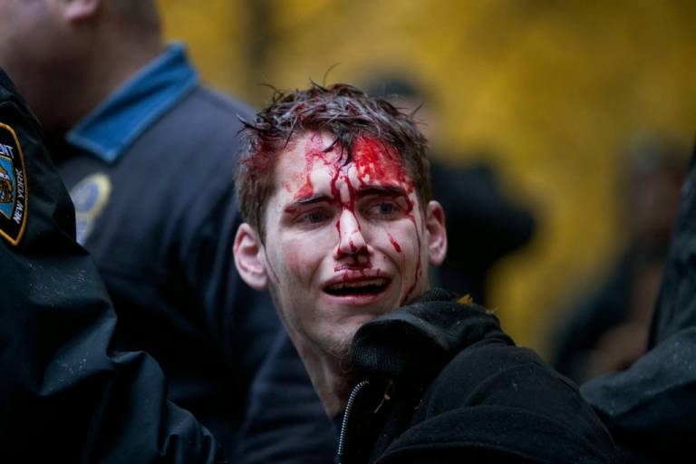 <p>A man who identified himself as Brendan Watts is seen with blood on his face while surrounded by three police officers in Zuccotti Park on November 17, 2011, in New York City. A fight broke out between protesters affiliated with Occupy Wall Street and police, in which Watts was injured.</p>