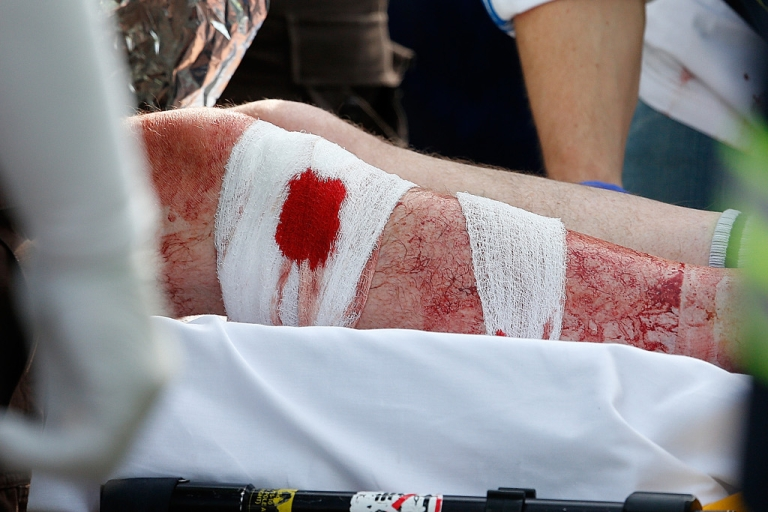 <p>The bandaged leg of a man hangs outside an ambulance outside a medical tent located ear the finish of the 117th Boston Marathon.</p>