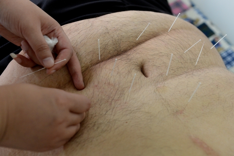 <p>Acupuncture was found to help with seasonal allergies temporarily in a new study by German researchers.</p>