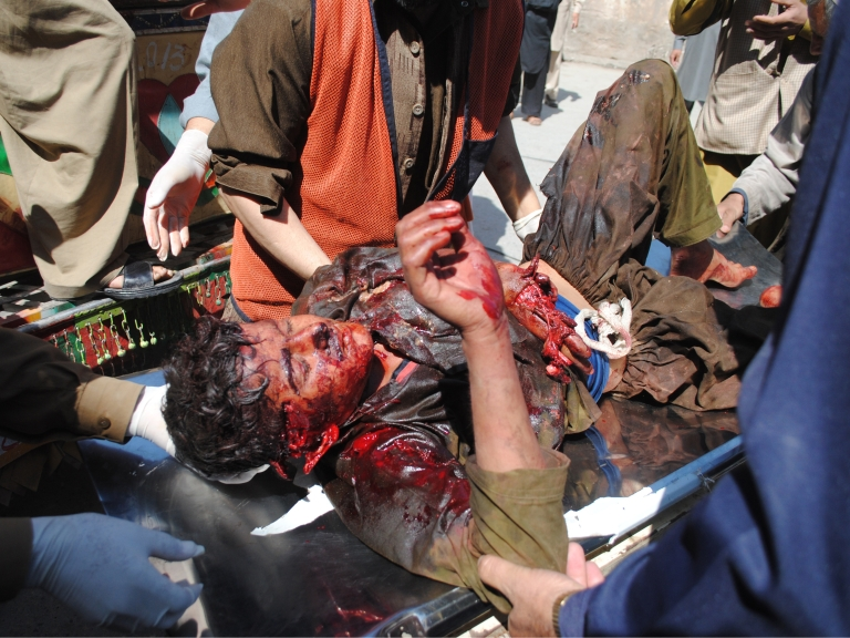<p>Pakistani volunteers wheel an injured blast victim into a hospital in Peshawar, following a car bomb blast at the Jalozai refugee camp on March 21, 2013.</p>
