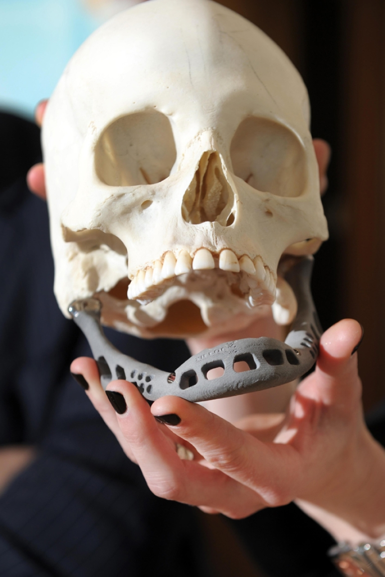 <p>An artificial jaw using innovative 3D innovative technology was successfully implanted into a Dutch woman suffering from a serious jaw infection in February 2012. A Connecticut company said a man had 75 percent of his skull replaced by a 3D skull implant in March, 2013.</p>