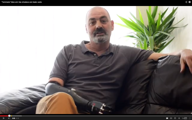 <p>About six years ago, Nigel Ackland got into an accident while working as a metal smelter. He eventually decided to have his forearm amputated, but now — thanks to a prosthetic hand called Bebionic3 — Ackland can finally tie his own shoes again.</p>