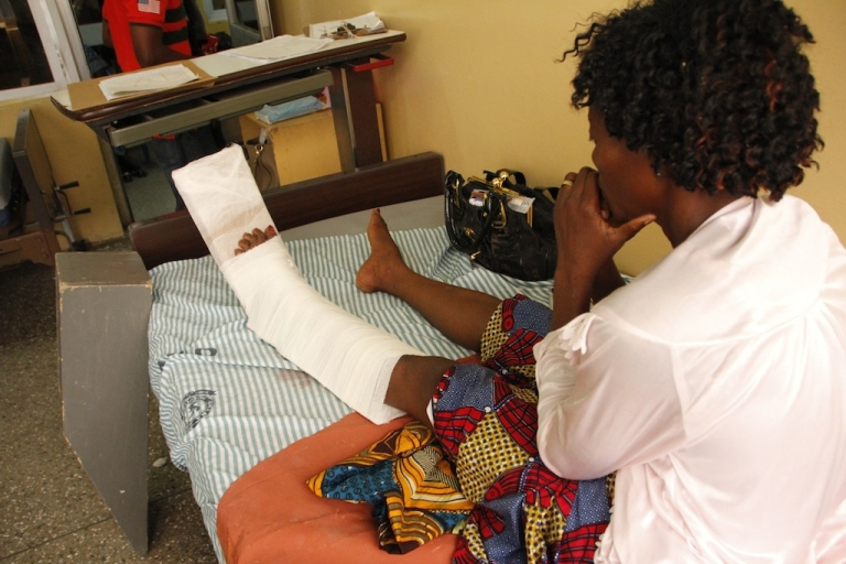 <p>Gerturde Sumbamala looks at her left leg on a bed in a hospital in Accra after it was broken in a crush in an evangelist church on May 19, 2013. The offer of free anointing water at a popular church caused a stampede that killed four and wounded 30.</p>
