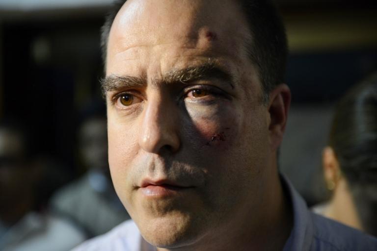 <p>Opposition lawmaker Julio Borges after a fight inside the Venezuelan parliament.</p>