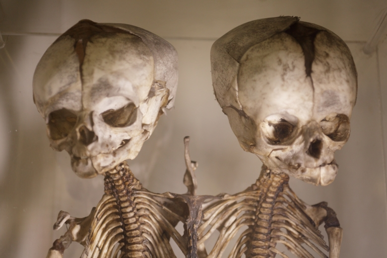 <p>These skeletons of cojoined twins are among the museum's 5,000 specimens.</p>