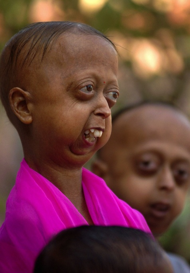 <p>CALCUTTA, INDIA:  In this picture taken 25 January 2005, Indian Progeria affected Khan family brother and sister (L/R) Rehana and Ekramul pose outside a clinic in Calcutta.</p>