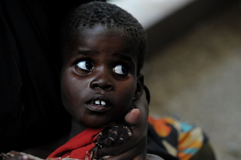<p>A Somali child looks up at doctors surrounding him after he was admitted into a Mogadishu hospital suffering from severe diarrhea on August 16, 2011. The UN warned recently that a cholera epidemic in Somalia could spread quickly. An estimated 100,000 people have fled into Somalia's famine-hit and war-torn capital in the past two months in search of food, water and medicine.</p>
