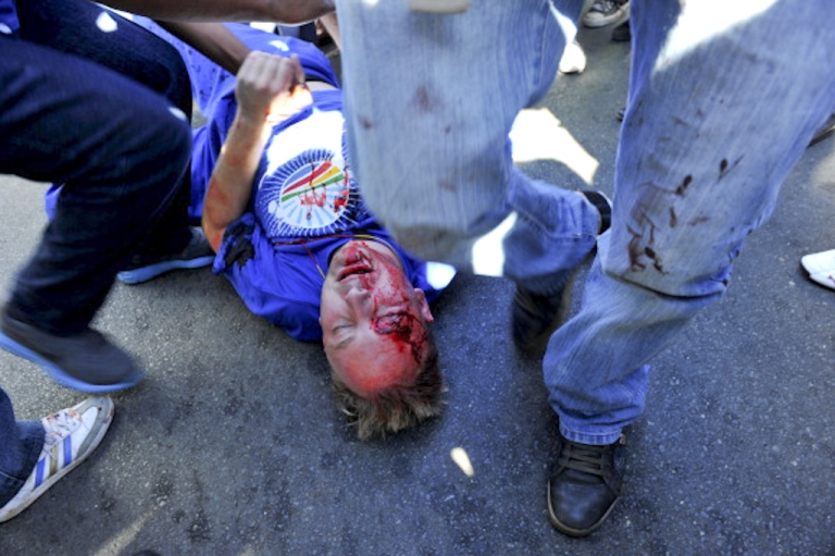 <p>A member of the opposition Democratic Alliance (DA) party is injured by a stone thrown on May 15, 2012 by members of the Congress of South African Trade Unions (Cosatu), the country's largest trade body, in the center of Johannesburg. DA supporters marched on the head office of the Cosatu to demand government wage subsidies for young people, which the party says will create over 400,000 jobs. Cosatu opposes the subsidy.  Clashes broke out as Cosatu supporters met them in the streets. Cosatu is part of an alliance with the ruling African National Congress.</p>