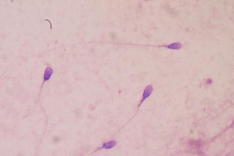 <p>Scientists invent a new technique that sheds light on how sperm swim.</p>