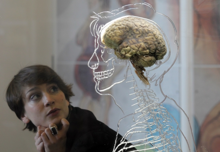 <p>A human brain is displayed in a museum at the @Bristol attraction on March 8, 2011 in Bristol, England.</p>