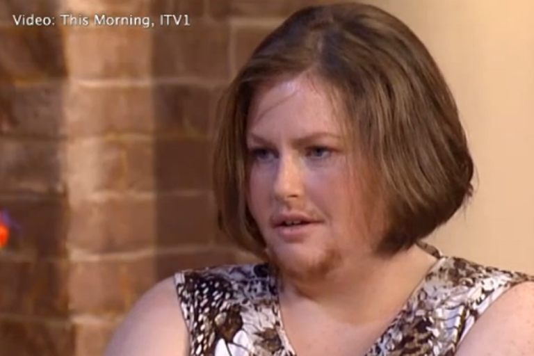 <p>Staffordshire housewife Siobhain Fletcher, 36, has had to shave since puberty but is letting her facial hair grow out in honor of Movember.</p>
