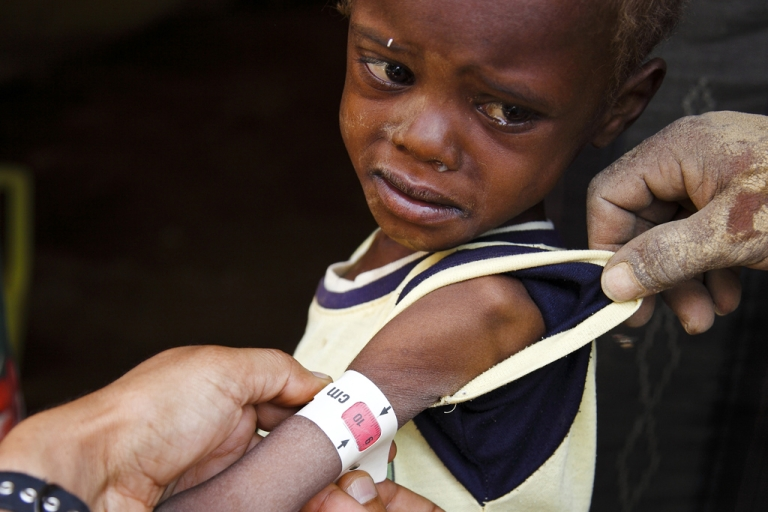 <p>Even several months into their stay at the camp, The Guardian found cases of families with severely malnourished children. Faris al Thweabi arrived with his family in Mazrak in September from the Haiden district west of Saada but remains severely malnourished.</p>