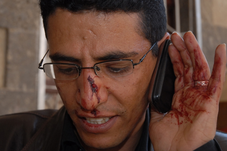 <p>Yemeni BBC Arabic service reporter Abdullah Ghorab speaks on his mobile phone after sustaining wounds he said he sustained when attacked by supporters of Yemen's ruling party during demonstrations in central Sanaa.</p>