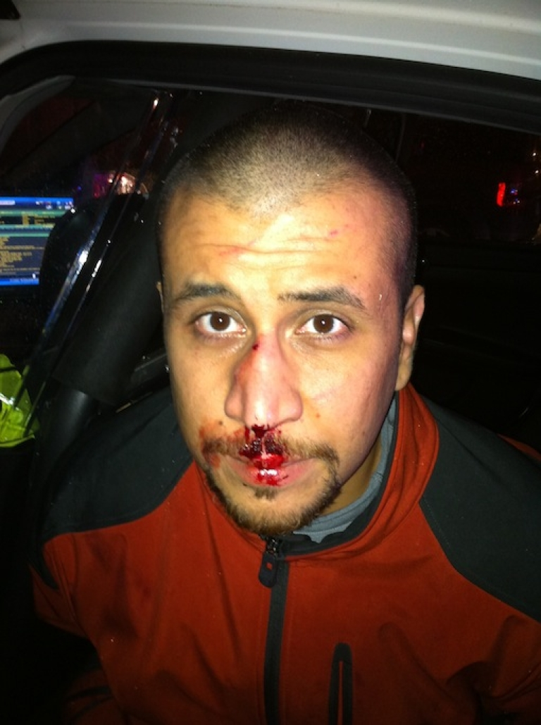 <p>Defense lawyers for George Zimmerman released this full-color photograph taken the night Zimmerman killed 17-year-old Trayvon Martin in Florida.</p>